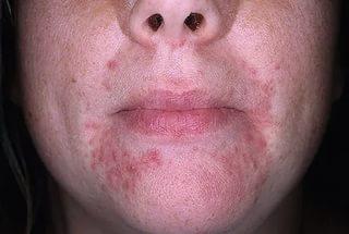 Начались высыпания на лице вокруг рта. Почему появляются прыщи вокруг рта и на подбородке: причины