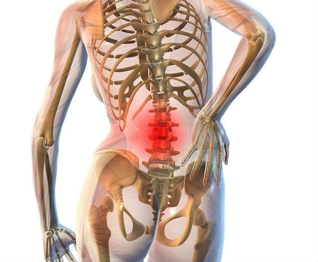 Хондроз поясничного отдела позвоночника: симптомы 79