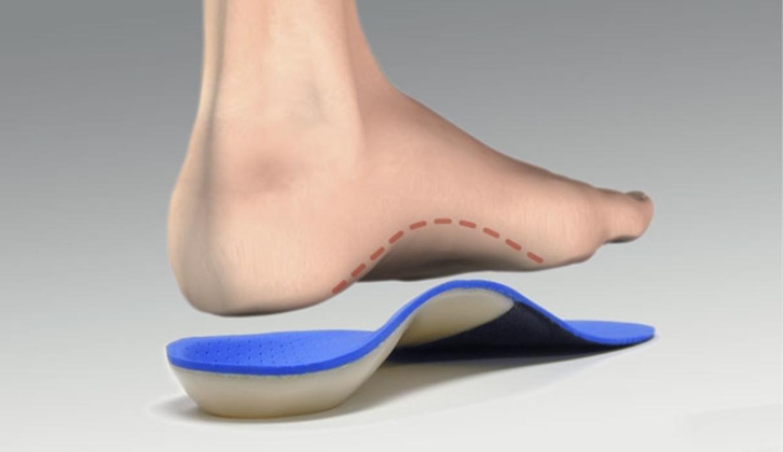 Ортопедические стельки при вальгусной деформации стопы у детей и взрослых – как выбрать, отзывы