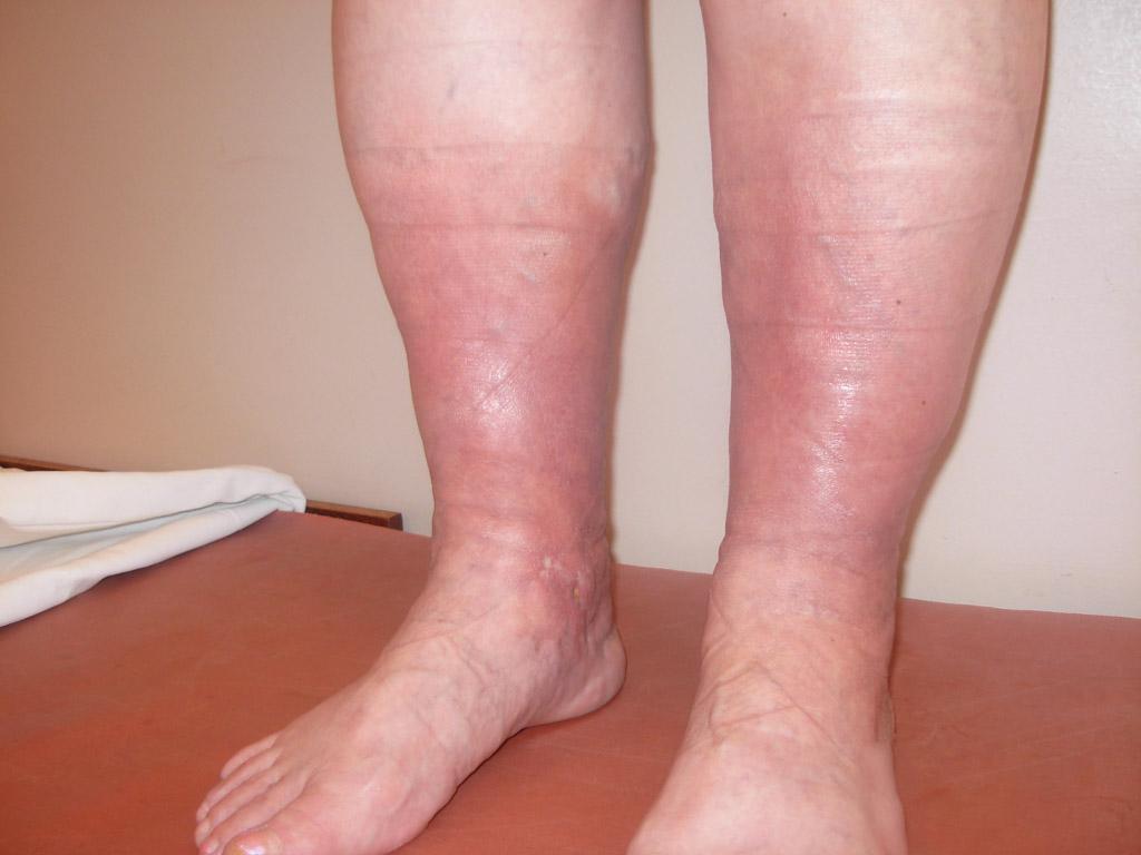 тромбофлебит симптомы нижних конечностей фото
