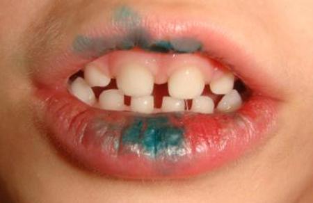 Можно зеленкой мазать во рту детям