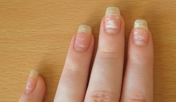 Приметы белые точки на ногтях