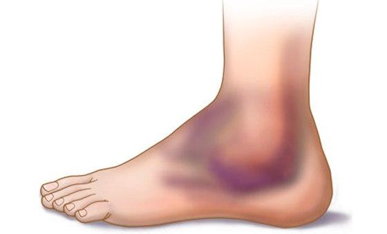Ушиб ноги: чем лечить в домашних условиях, сильный, отек, у ребенка, с гематомой после, мазь, не проходит, фото