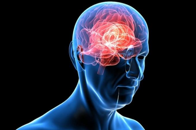 Сотрясение головного мозга как определить