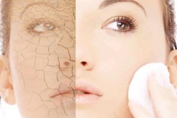 Глицерин для кожи вокруг глаз от морщин в домашних