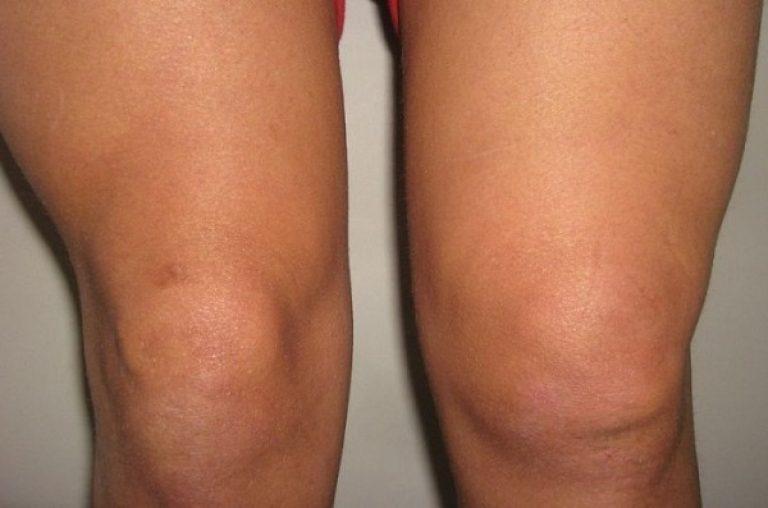 Что предпринимать если колено болит и опухло