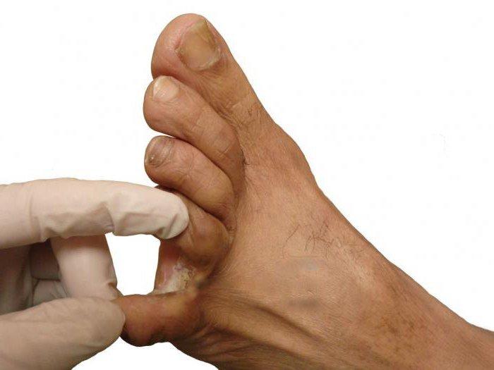 Как и чем вылечить вирусную бородавку между пальцев ног