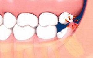 Болят десна у зуба что делать