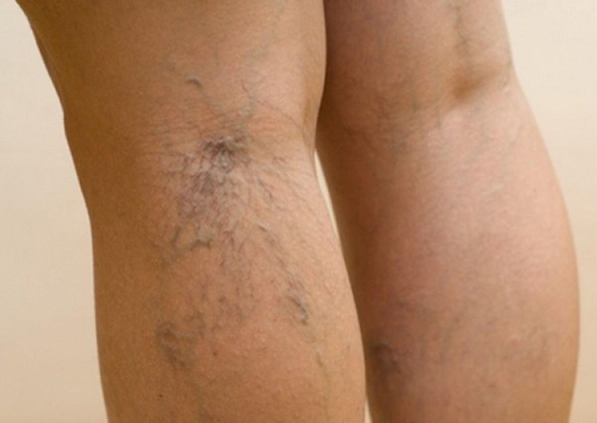 Синеет нога при варикозе — Лечим варикоз