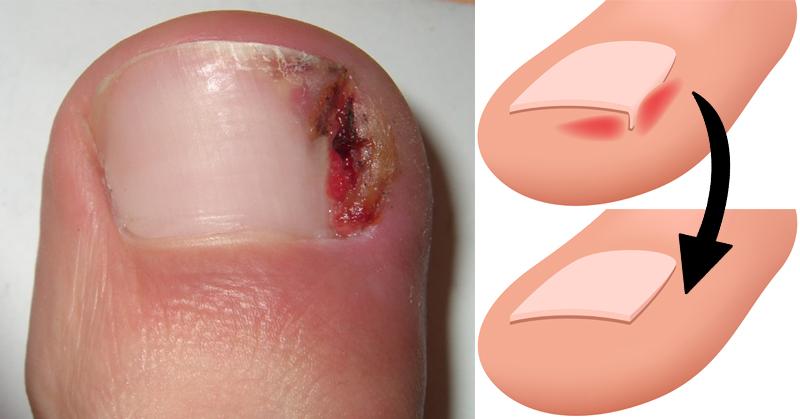 Как избавиться от вросшего ногтя
