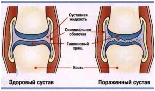 Изображение - Профилактика болей в суставах %D1%81%D1%83%D1%81%D1%82%D0%B0%D0%B22