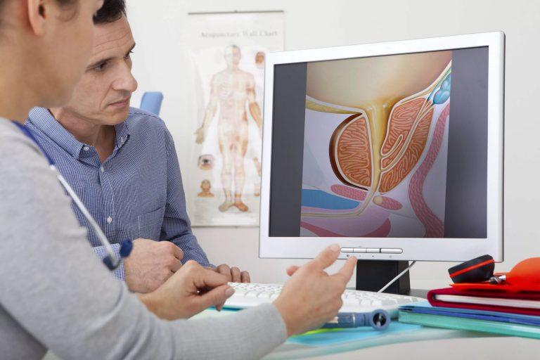 Анализы при уретрите у мужчин