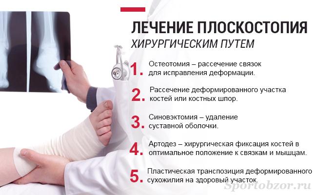 Хирургическое лечение плоскостопия у взрослых