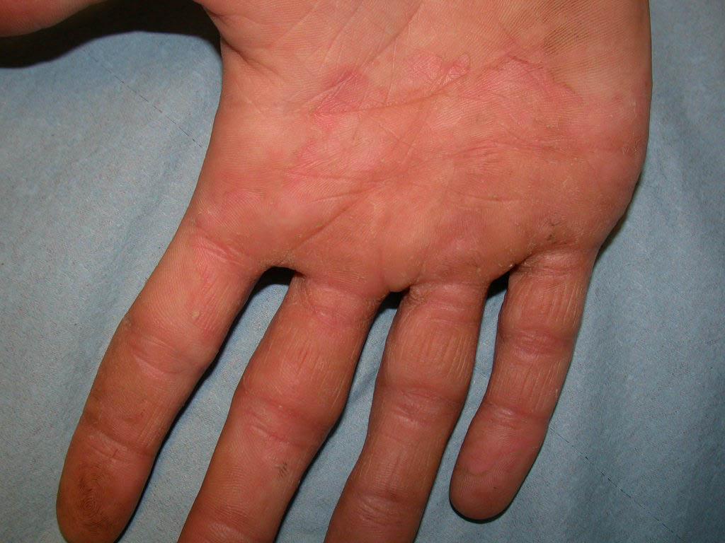 Мази от грибка на ногах между пальцами на руках