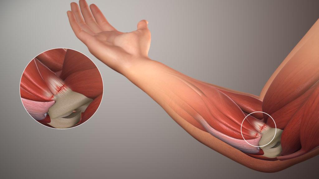 Болят локтевые суставы что делать как лечить в домашних условиях