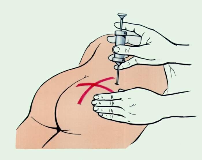 Инфильтрат после укола как лечить