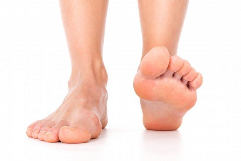 Как лечить плоскостопие 1-й 2-й 3-й степени и к какому врачу обращаться