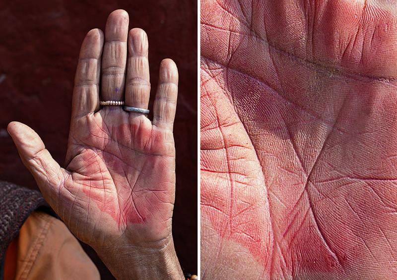 Почему горят ладони рук? Красные ладони рук