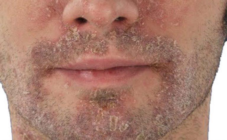 При сухости и шелушении кожи лица у мужчин обратите внимание на увлажняющие кремы