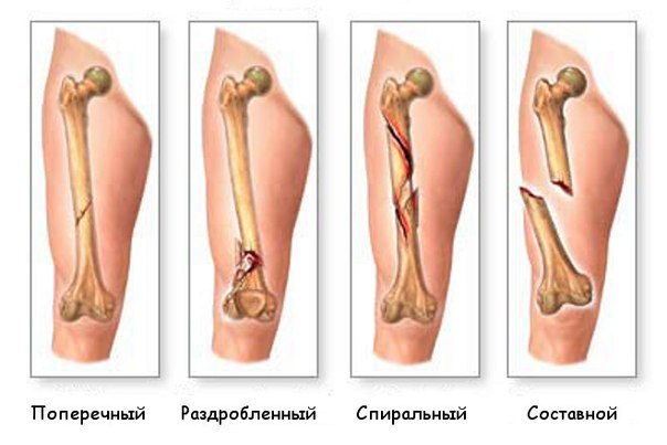 Первая помощь при переломах костей Виды переломов