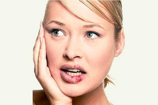 Немеют губы: причины, почему немеет верхняя, нижняя губа, уголки, язык у ребенка, беременной женщины, мужчины. Что делать
