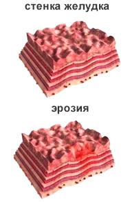 Лечение эрозивного гастрита облепиховым маслом