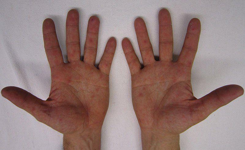 Печет рука внутри. Жжет ладонь левой руки Горит ладошка левой руки приметы