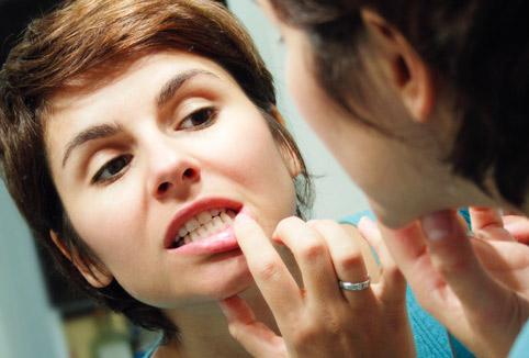 Лечение десен при беременности, кровоточивость