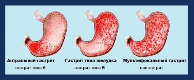 Хронический очаговый антральный гастрит: диета, лечение