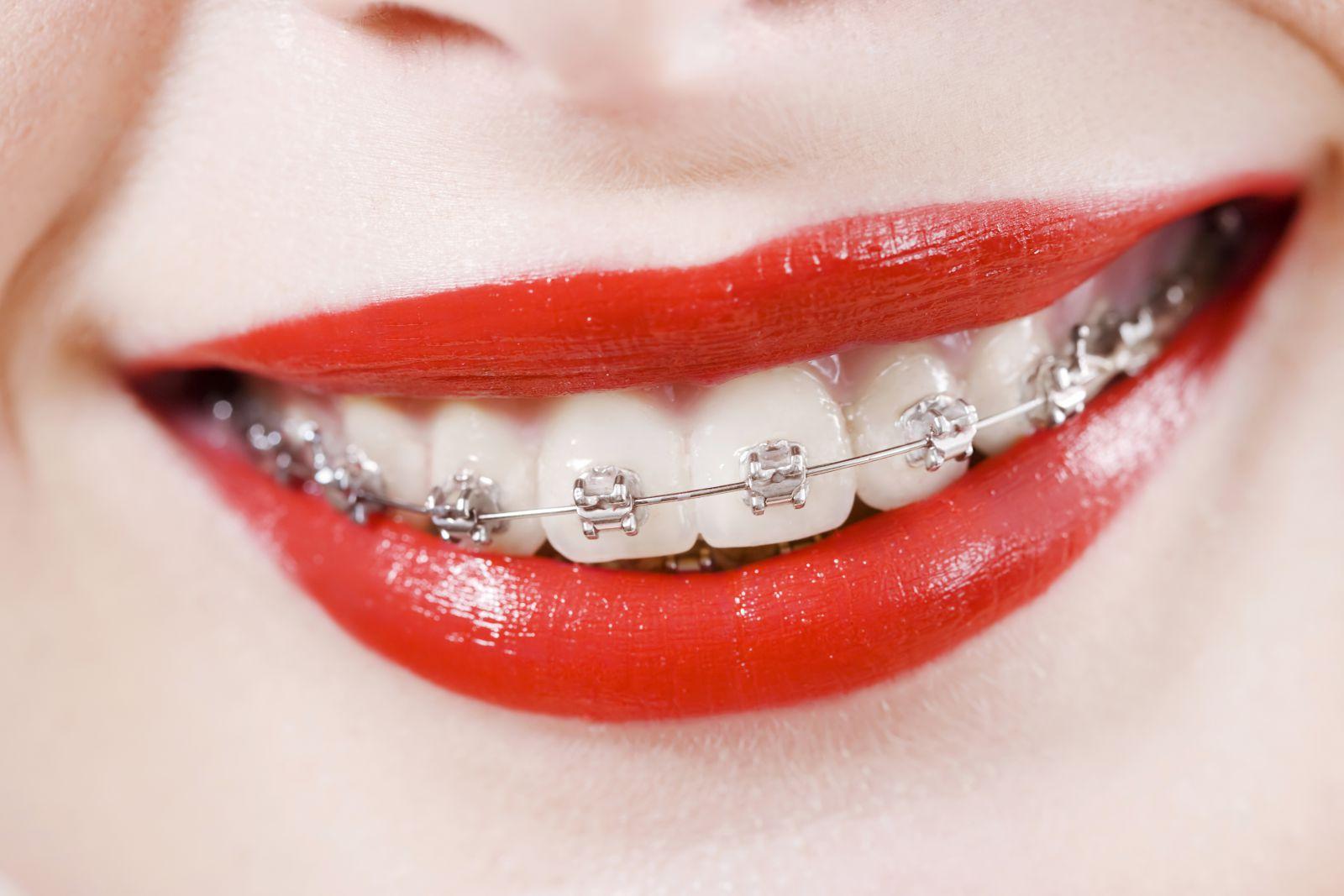 Можно ли лечить зубы с брекетами - ПрофиМед