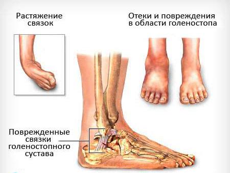 Болит нога в области щиколотки