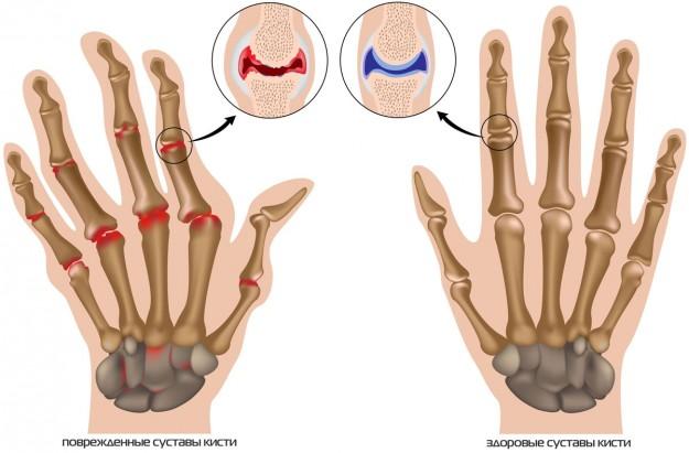 Болит фаланга среднего пальца на руке
