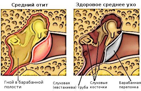 Покалывание в мочке уха. О чем говорит боль в ухе